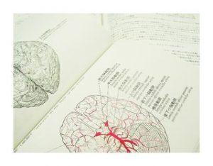 脳をオーバーフローする動き